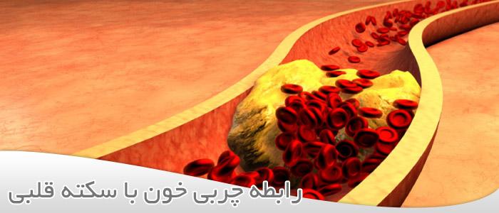 رابطه چربی خون با سکته قلبی