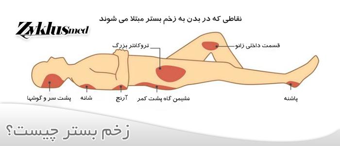 زخم بستر چیست؟