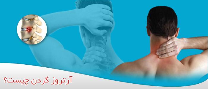 آرتروز گردن چیست؟